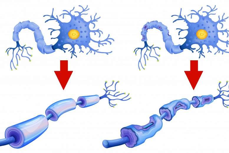 Multiplā  skleroze aktualitāti nezaudē