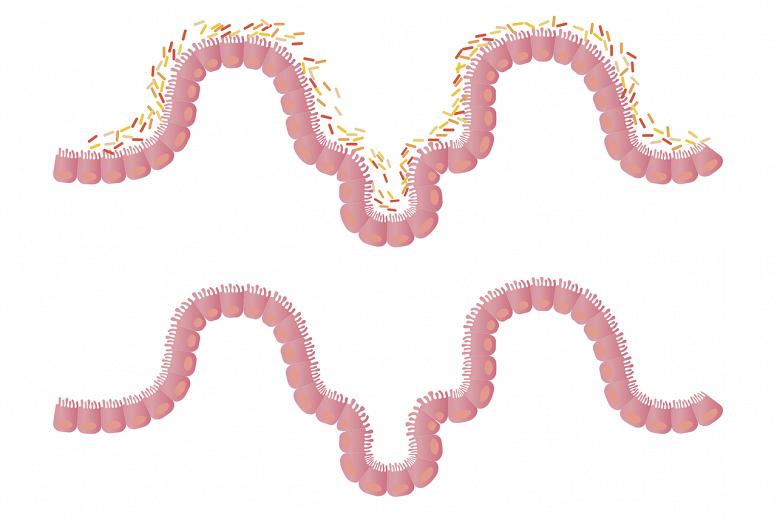 Probiotikas — kā izvēlēties piemērotāko? Probiotiku saistība  ar zarnu mikrobiotu