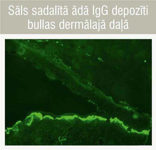 Sāls sadalītā ādā IgG depozīti bullas dermālajā daļā