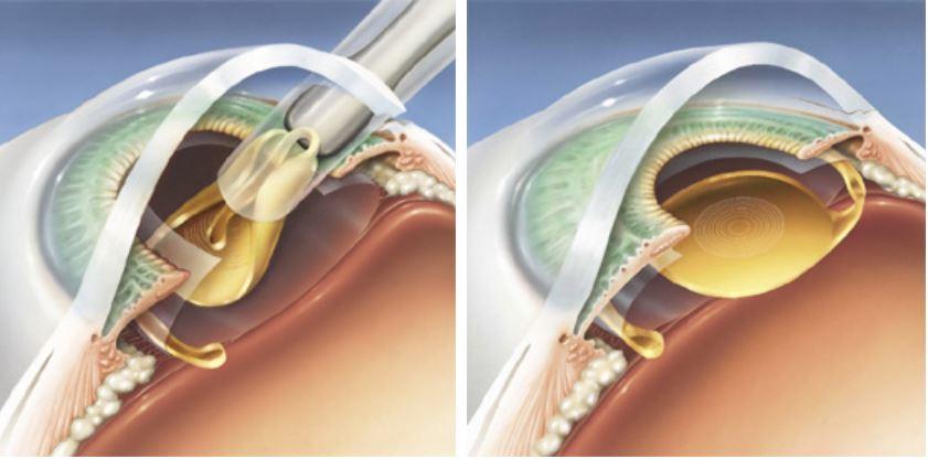 Multifokālas intraokulāras lēcas implantācija
