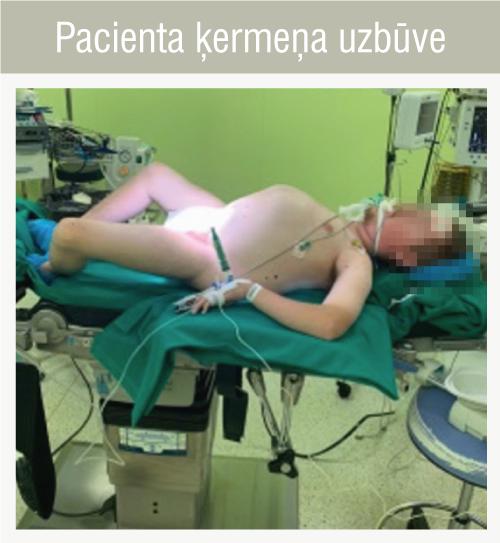 Pacienta ķermeņa uzbūve