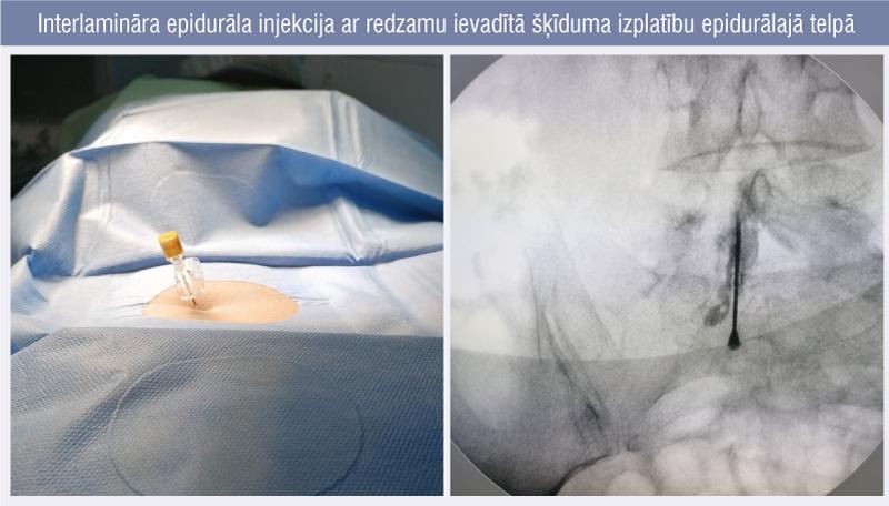 Interlamināra epidurāla injekcija ar redzamu ievadītā šķīduma izplatību epidurālajā telpā