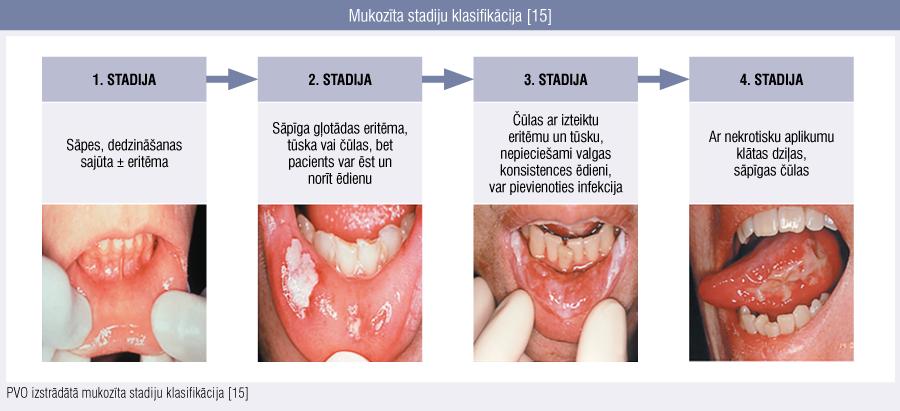 Mukozīta stadiju klasifikācija [15]
