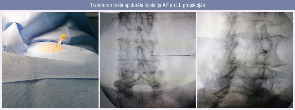 Transforamināla epidurāla injekcija AP un LL projekcijās