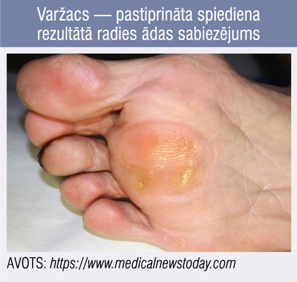 Varžacs — pastiprināta spiediena rezultātā radies ādas sabiezējums