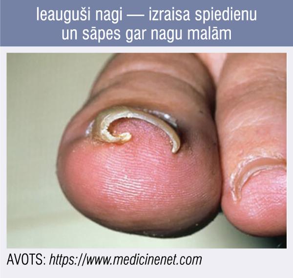 Ieauguši nagi — izraisa spiedienu un sāpes gar nagu malām