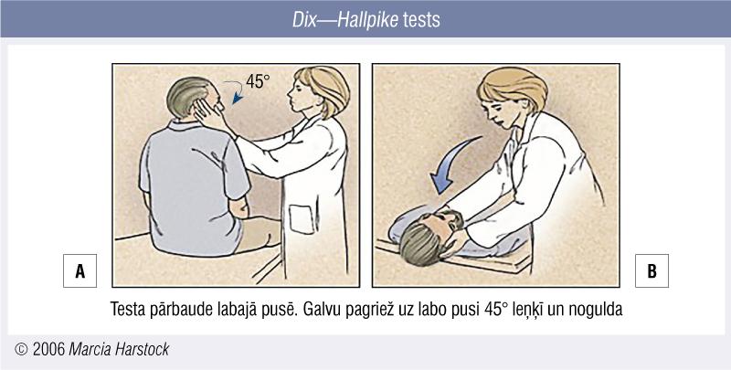 Dix—Hallpike tests