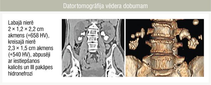 Datortomogrāfija vēdera dobumam