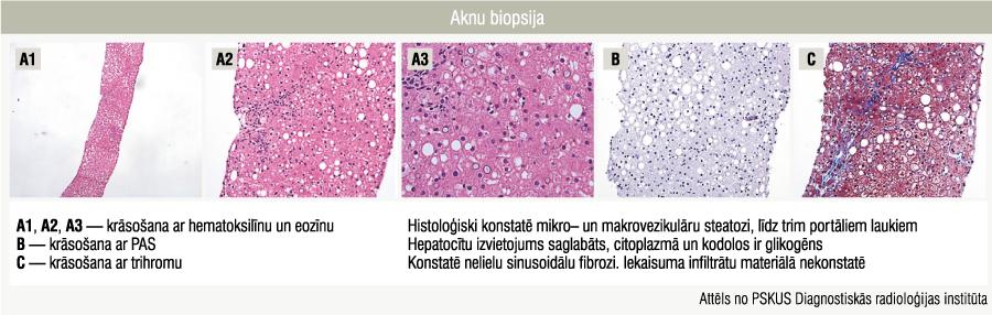 Aknu biopsija