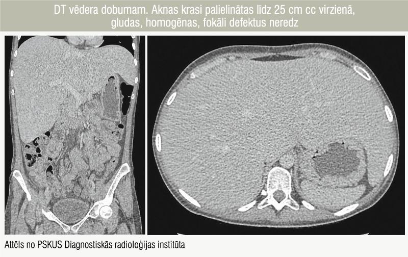 DT vēdera dobumam. Aknas krasi palielinātas līdz 25 cm cc virzienā,  gludas, homogēnas, fokāli defektus neredz