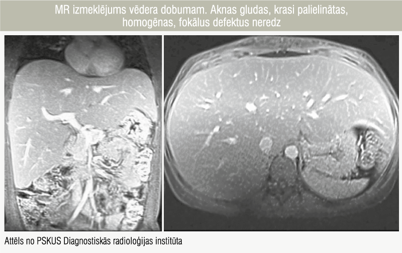 MR izmeklējums vēdera dobumam. Aknas gludas, krasi palielinātas,  homogēnas, fokālus defektus neredz
